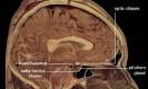 מבנה המוח. מקור: ויקפידיה ברשיון שימוש חופשי Public domain. באדיבות : National Institutes of Health